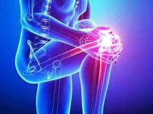 Knee-pain3-300x300