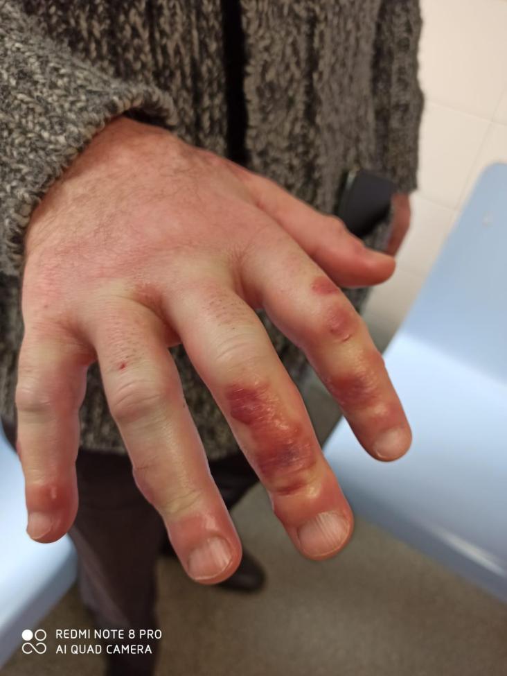 Acroisquemia Lesion Piel Covid-19
